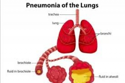 WHO Sebut Wabah Pneumonia China Tidak Menyebar